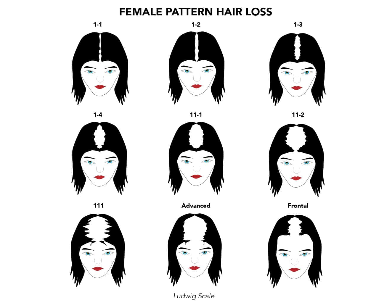 female hair pattern